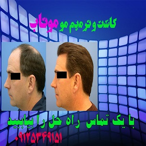 پیوند مو طبیعی موتاب-pic1
