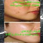 پوست بدون لک - کاملا گیاهی